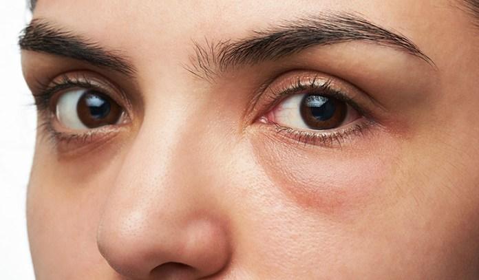 wearing makeup bad for skin irritation