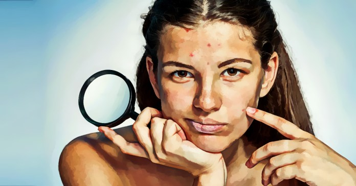 Some skin diseases can be controlled but not cured