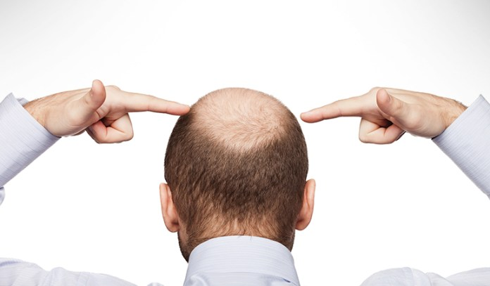 Smooth Skin Is A Sign Of Alopecia Areata
