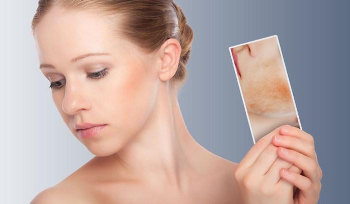 wearing makeup bad for skin rashes