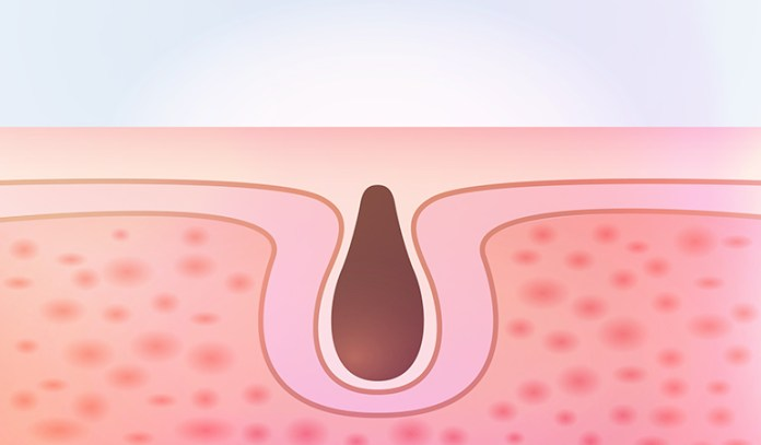 Clogged pores come from too much oil production.