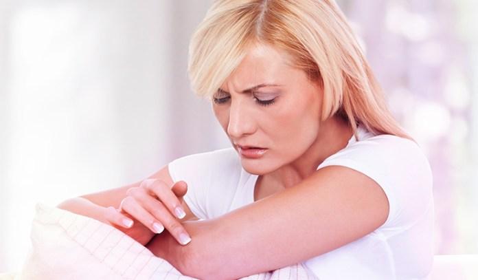 5-heals-eczema