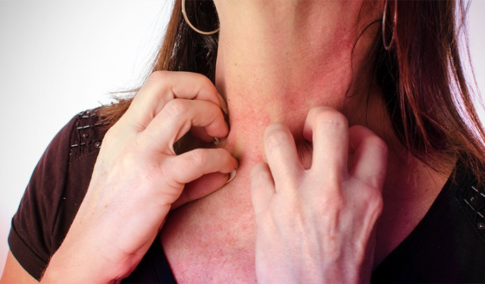 9-skin-irritations