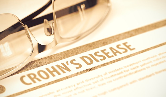 Yellow Stool Could Be Due To Crohn's Disease