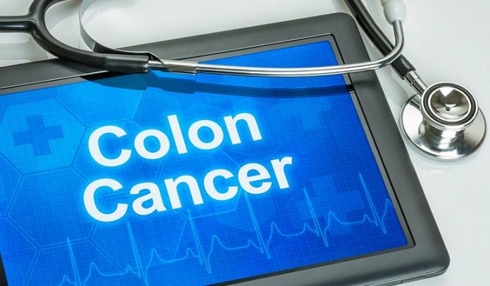 Fiber In Coconut Flour Helps Ward Off Colon Cancer