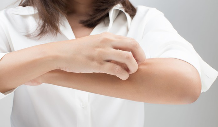 A sluggish thyroid produces fewer thyroid hormones, making your skin dry and itchy.