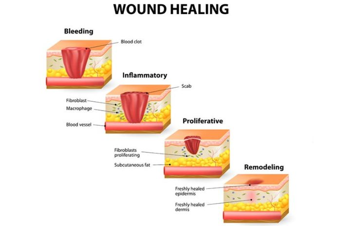 Honey And Cinnamon Have Antimicrobial Properties To Heal Wounds