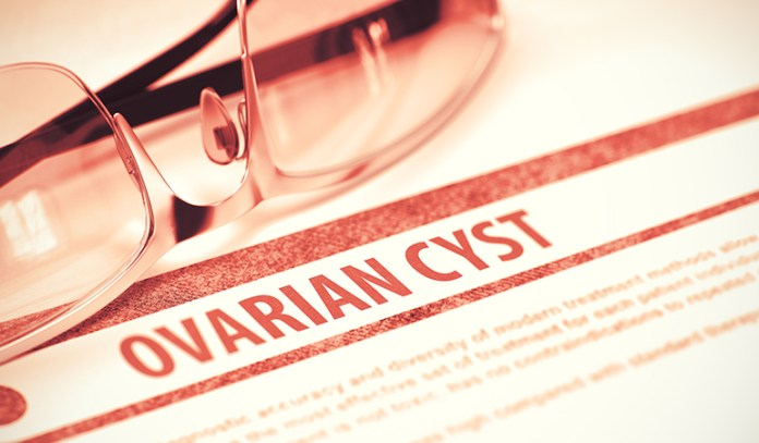 Cramps May Be Caused By Ovarian Cysts