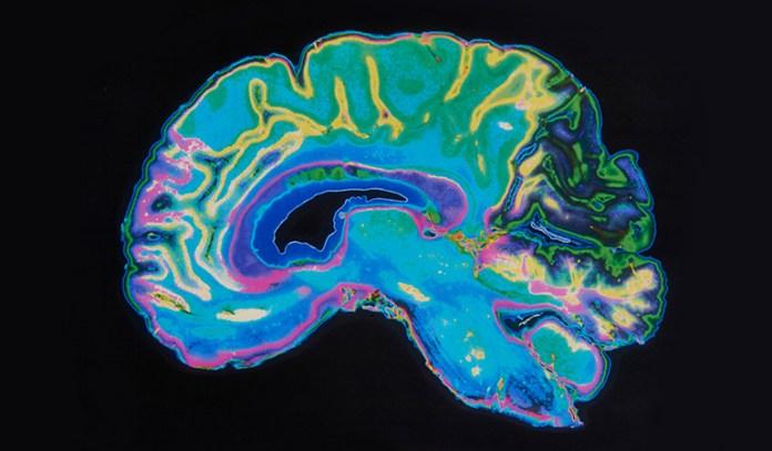 Only Children Have Different Brain Structures