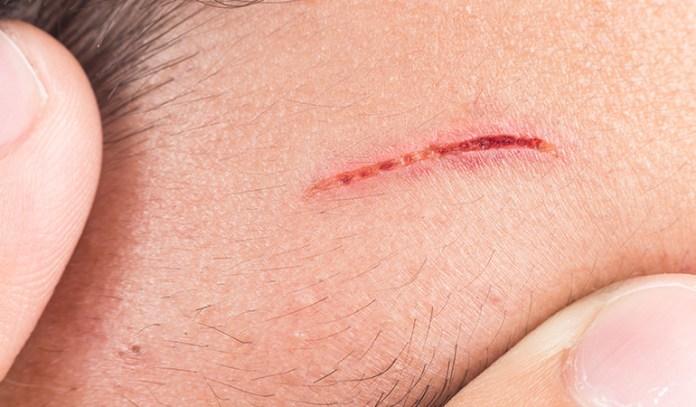 Skin benefits of avocado Wound Healing