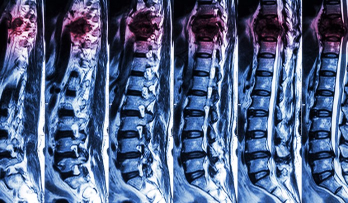 A good physician can diagnose the cause of back pain without a scan