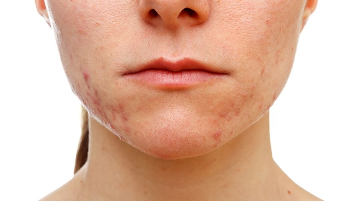 Products with high pH reduce acne
