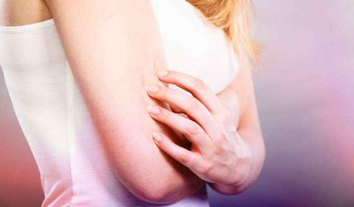 Pressure On The Skin Can Result In Hives