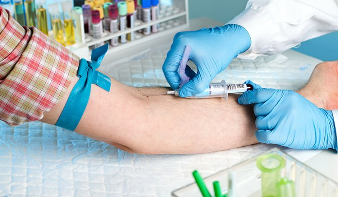 Blood tests are often used to diagnose priapism