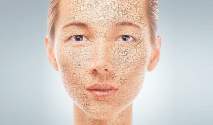 An Omega-3 Deficiency Is Likely To Cause Very Dry Skin, Excess Hairfall, And Brittle Nails