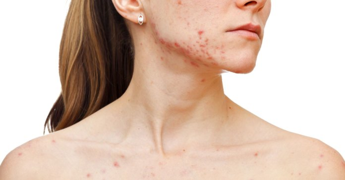 Acne can cause dry, itchy skin.