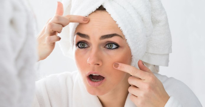 How To Naturally Remove Almost Every Kind Of Skin Spot