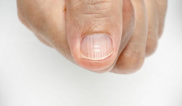 Horizontal nail ridges can be due to trauma