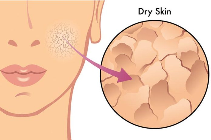 Extremely Dry Patches May Be An Indication Of Hypothyroidism