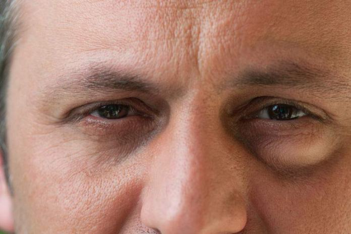 The lump could be due to an infected eyelash follicle