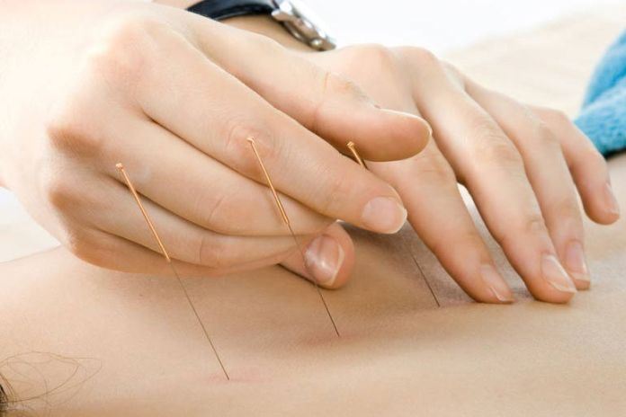 Although there is no cure, acupuncture eases pain