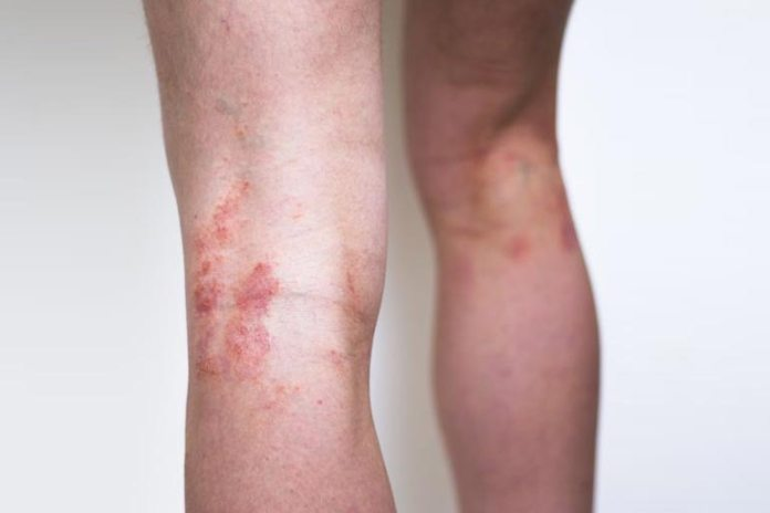 An Itchy Rash On Your Knee Or Elbow May Be An Indication Of Celiac Disease