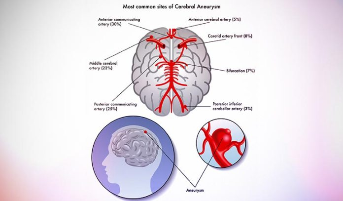 Brain aneurysm can be fatal to health and can cause death