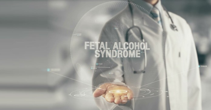 Fetal alcohol syndrome is a serious condition.