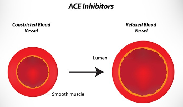 ACE inhibitors have a lot of side effects
