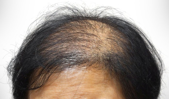 It is an autoimmune condition that affects your hair growth