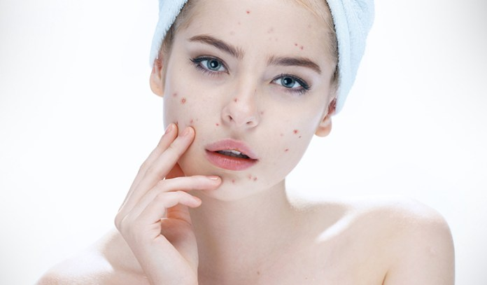 Using turmeric powder has seen to be effective for acne