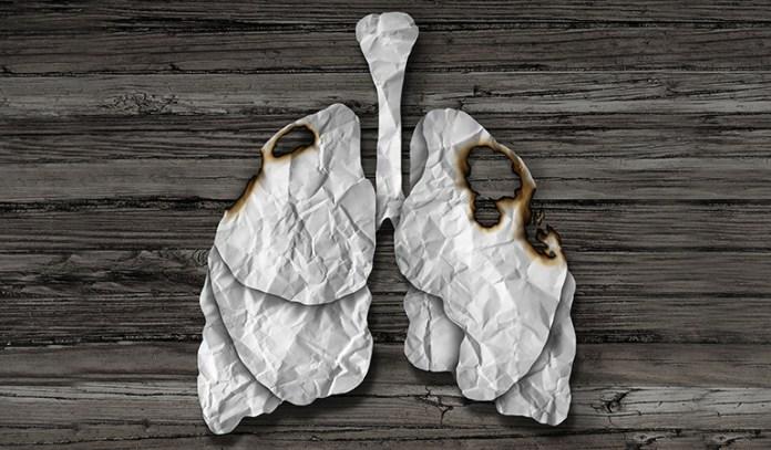 Antioxidants in cauliflower lower risk of lung cancer