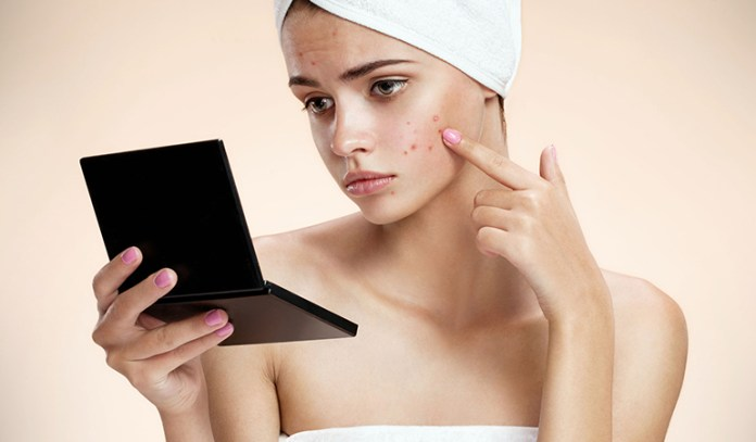 Hormonal imbalance can cause acne