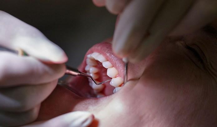 Stem cells regenerates dental tissue