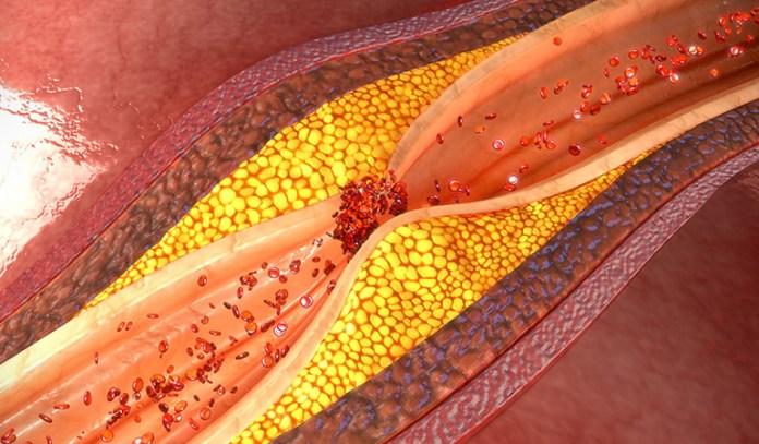 Sulfurophane helps unclog arteries and reduce blood pressure.