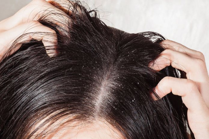 Salicylates in aspirin can help you combat dandruff and itchy scalp issues.