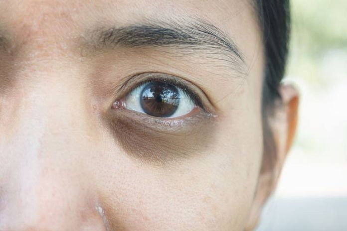 Puffy eyes and dark circles are caused by fat sliding down the eyes