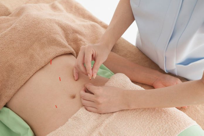 1075 individuals were studied to check acupuncture's effects on constipation.