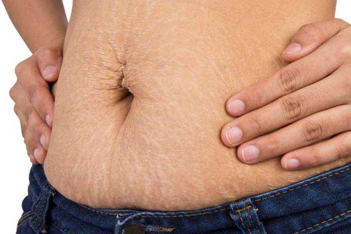 Stretch marks appear in places where the fats have reduced drastically