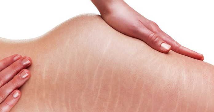 These remedies reduce the appearance of stretch marks