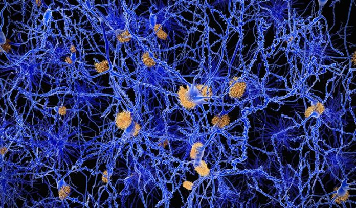 The brain is able to flush out harmful toxins like beta-amyloid more rapidly when you sleep