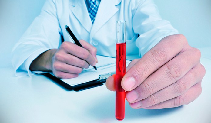 Anemia can be easily managed