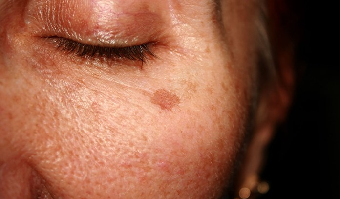 Vitamin C and A heal hyper-pigmentation.