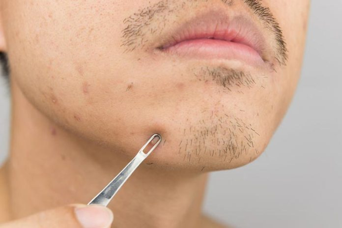 Pimples form due to the oil secreted by the sebaceous glands.