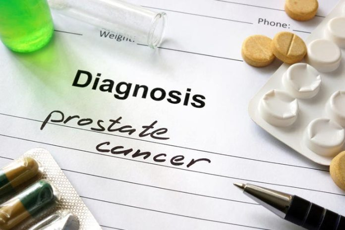 Fish oil may increase chances of prostate cancer