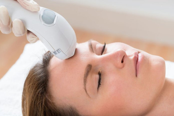 Laser uses heat to damage the hair follicles