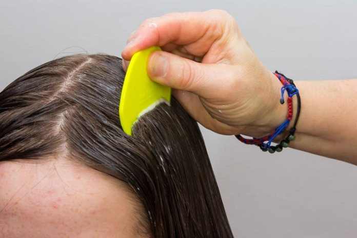 Olive oil suffocates lice and lubricates hair to make it easy to comb the eggs out.