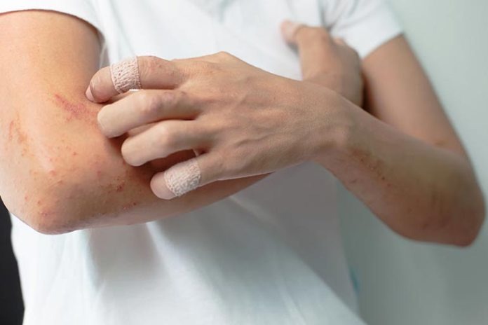 Fish oil may cause allergic reactions.