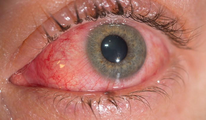 Viral conjunctivitis causes itching and burning.