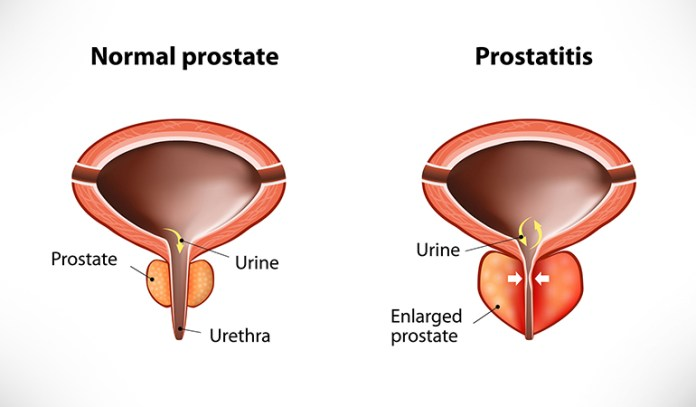 Inflammation in the prostate gland causes prostatitis.